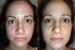 orlando-med-spa-before-after-facial-front
