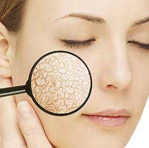 Тоник для лица для сухой кожи