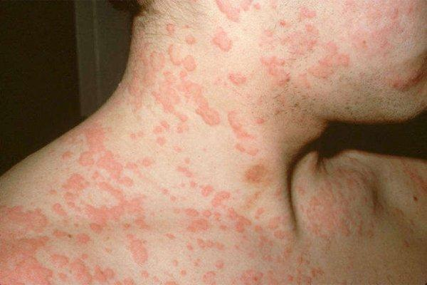 Крапивница аллергическая на коже: симптомы на фото, как лечить, диета или что можно есть?