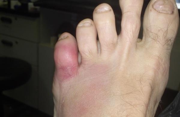 Как убрать мозоль на пальце ноги на мизинце как шишка как избавиться?