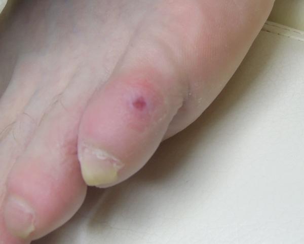 Как вылечить сухую мозоль на пальце ноги в домашних условиях