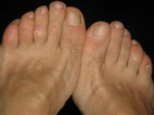 Как лечить мозоль на пальце ноги в домашних условиях народными средствами