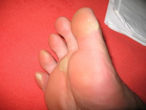 Натоптыши на подошве со стержнем: лечение, фото, как удалить