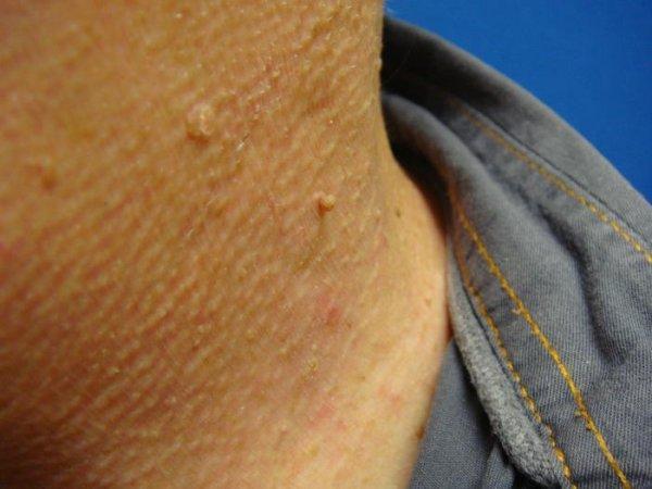 Причины появления бородавок на шее и методы их удаления