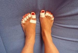 сухая мозоль на пальце ноги лечение