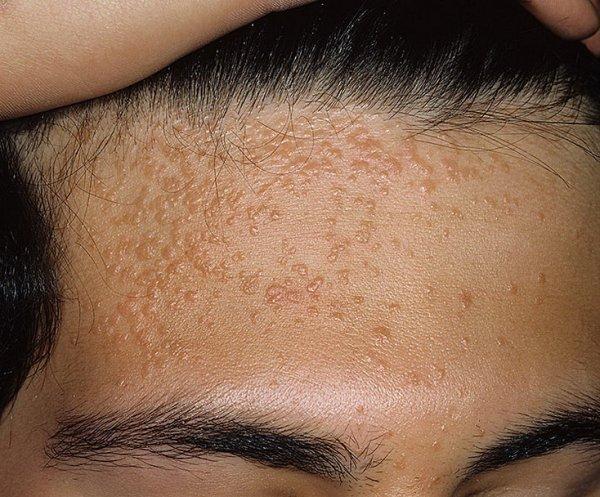 как лечить вирусные бородавки