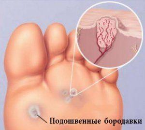 podoshvennaya-borodavka-1