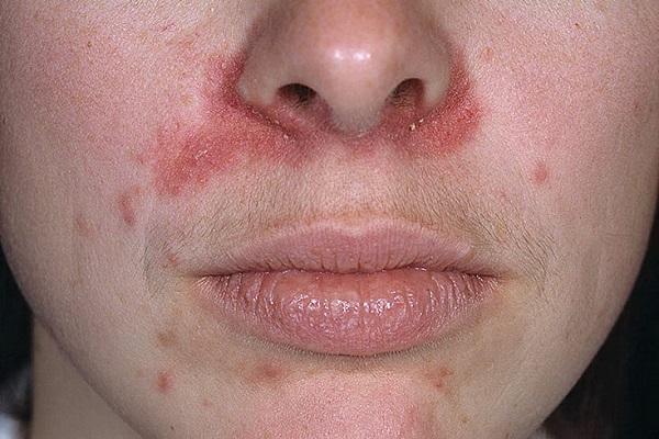Водянистые пузырьки на коже - Сыпи(высыпания)