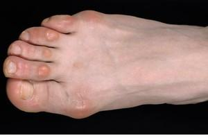 Если болит мозоль на пальце ноги thumbnail