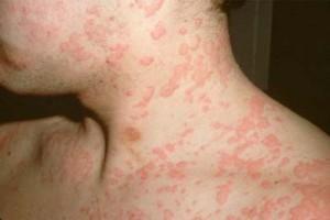 аллергической