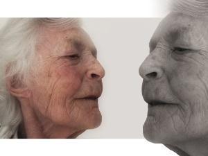 Как избавиться от старческих бородавок