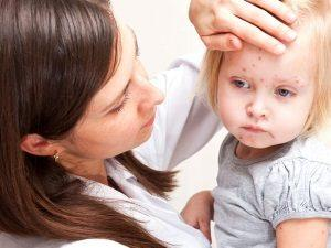 крапивница симптомы у детей