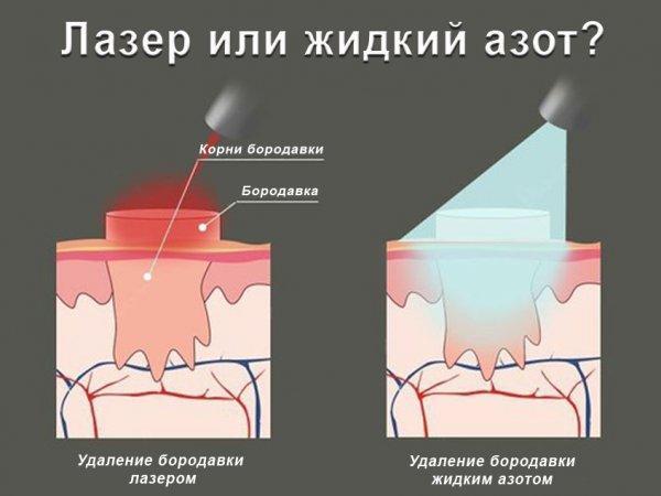 Как удаляют бородавки жидким азотом
