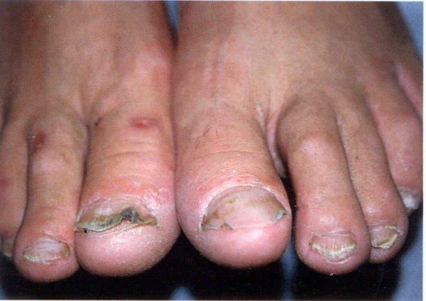 бородавка у ногтя