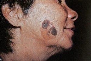 старческие бородавки возрастные кератомы фото