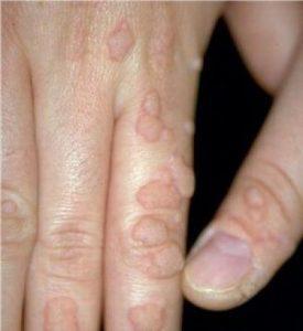 Вирусная бородавка на пальце руки