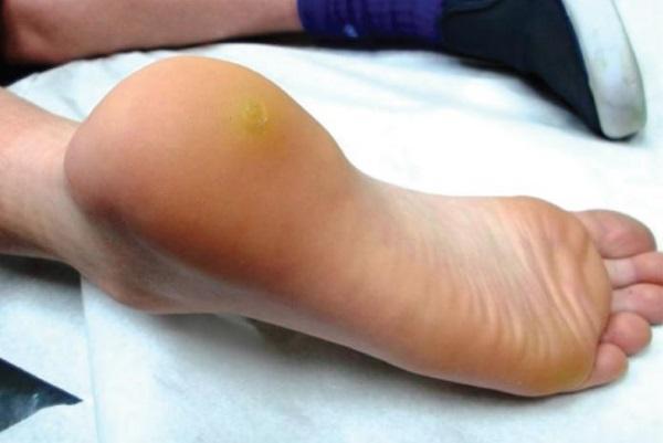 Бородавки на ногах — причины и лечение