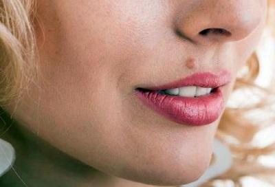 Как вывести бородавку на лице в домашних условиях