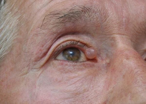 Бородавки на лице и их лечение