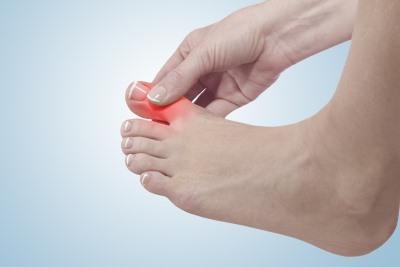 мозоли на ногах на большом пальце