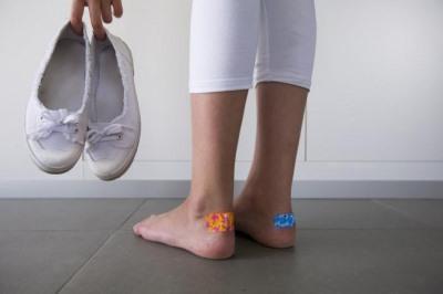 мозоли на ступнях лечение быстрое избавление