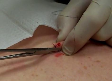 Восстановление после процедуры