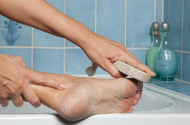 Как быстро удалить бородавку в домашних условиях с корнем на стопе ноги, на пальце руки, лице, ноге, ступне