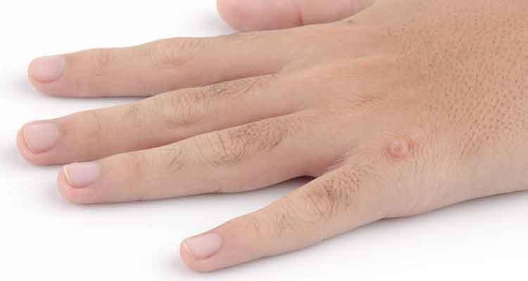 Старческие кожные заболевания фото и описание